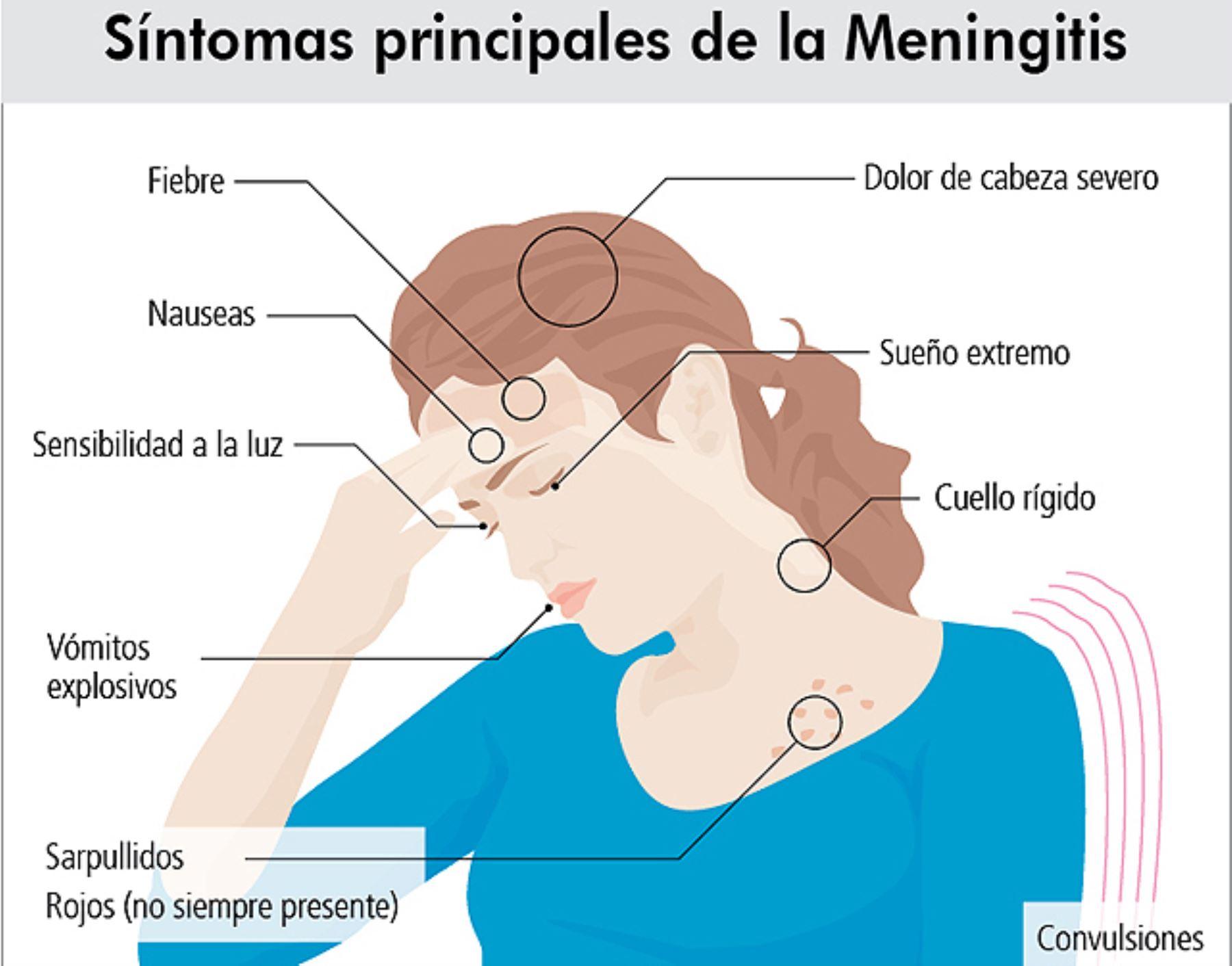 Cmo reconocer los sntomas de la meningitis espinal