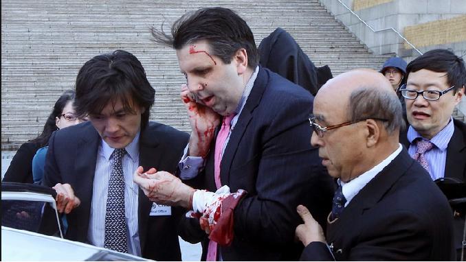 Embajador de EE. UU. se recupera de agresión con cuchillo en Seúl
